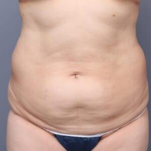 お腹の脂肪しっかり吸引します
