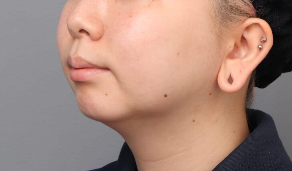 顔の脂肪吸引 10日目の内出血