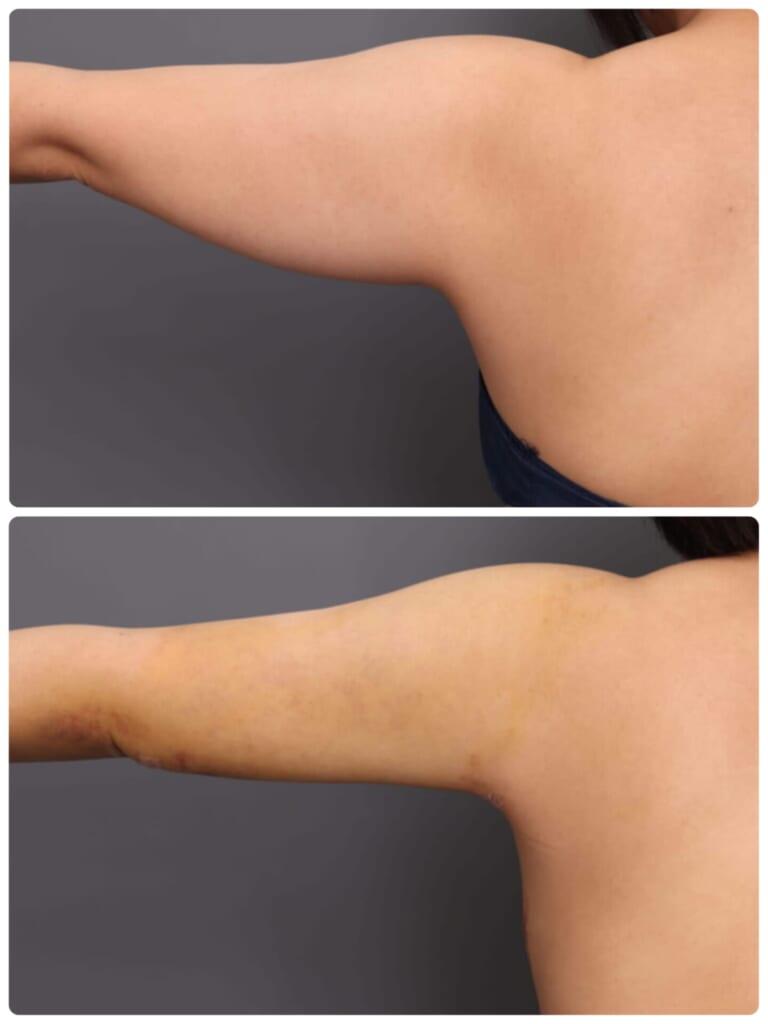 二の腕脂肪吸引の威力