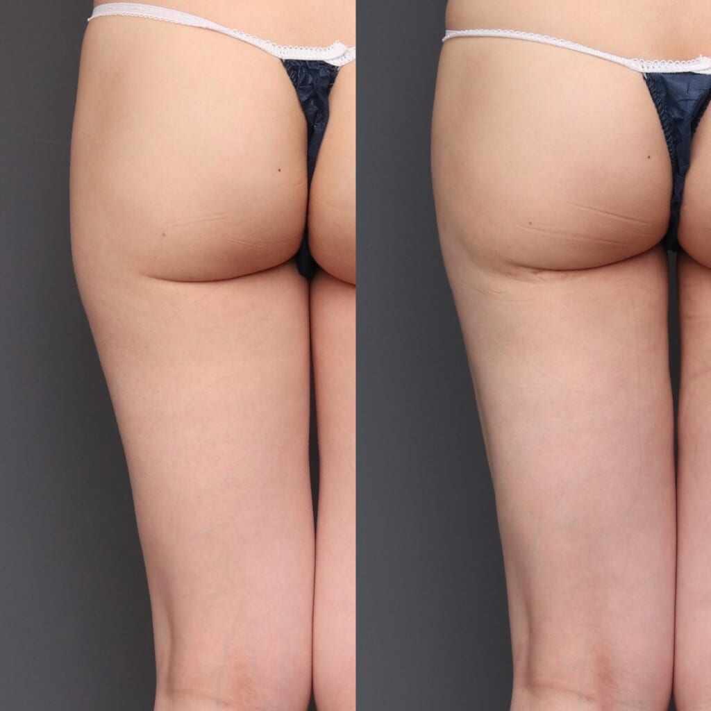 太もも外側の張り出しを減らす