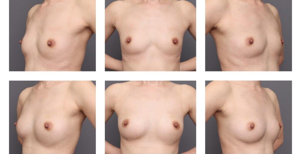 脂肪豊胸はふんわり自然なお胸になります