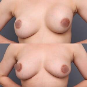 シリコンバッグ抜去後の脂肪豊胸1ヶ月後
