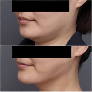 頬顎脂肪吸引+レヌビオン 手術翌日