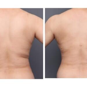 背中吸引1ヶ月後